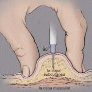heparina4